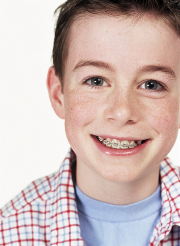 A boy smiles with braces.