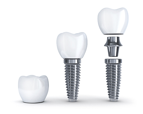 Diagram of dental Implants by dentist in Appleton, WI.