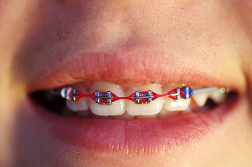 A close up of braces on a young kid.