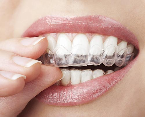 Using a teeth whitening tray at home can be a convenient way to whiten your teeth.